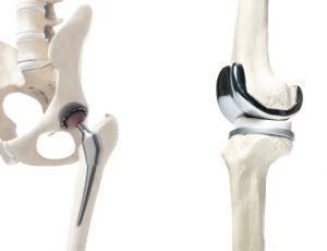 totale heupprothese (nieuwe heup) totale knieprothese (nieuwe knie)