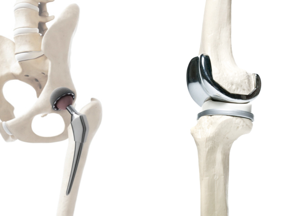 Fysiotherapie Nijmegen - totale heupprothese (nieuwe heup) totale knieprothese (nieuwe knie)